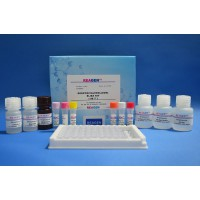 甲壳类中麻痹性贝类毒素残留检测试剂盒